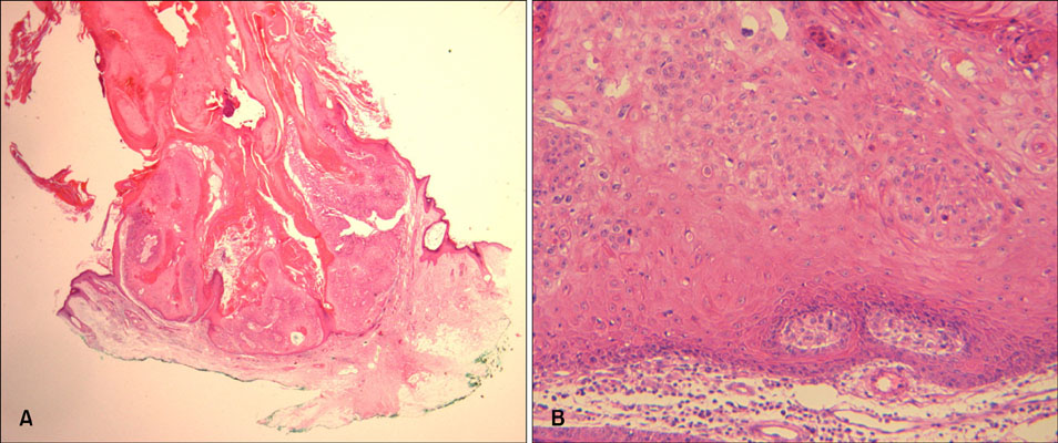 A Case of Cutaneous Horn Originating from Keratoacanthoma